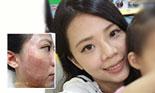 飛梭雷射治療痘疤和毛孔粗大