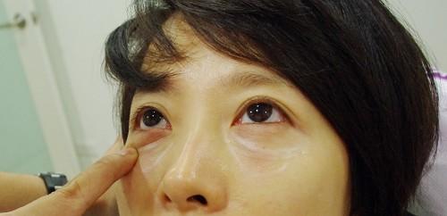 玻尿酸淚溝